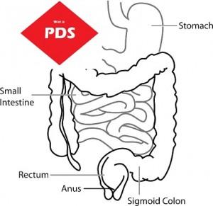 PSD prikkelbare darmsyndroom