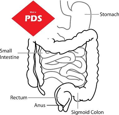Het prikkelbare darm syndroom (PSD) – bekend en mysterieus